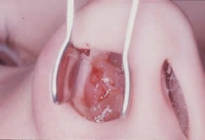 Хирургическое удаление полипа
