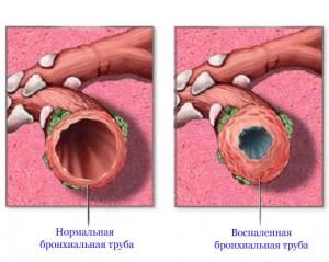 Нормальная и воспаленная бронхиальная труба