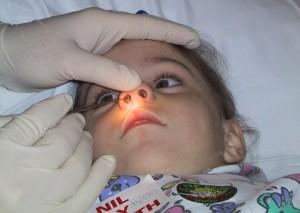 Инородное тело в носу ребенка