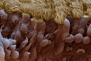 Воспаленная слизистая носа при синусите