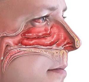 Отек слизистой оболочки носа при вазомоторном рините