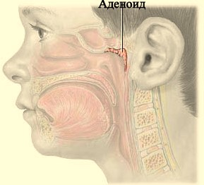 Аденоид