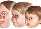 Особенности гайморита у детей и его лечение