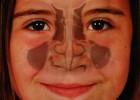 Специфика лечения гайморита у детей