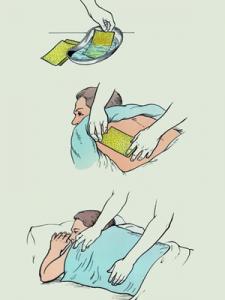 Как поставить горчичники во время простуды?