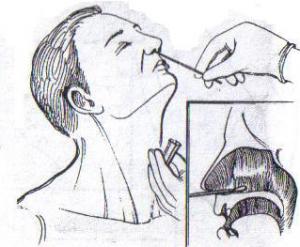 Мазок из носа на эозинофилы: норма и отклонения