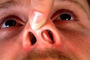 Отечность слизистой носа
