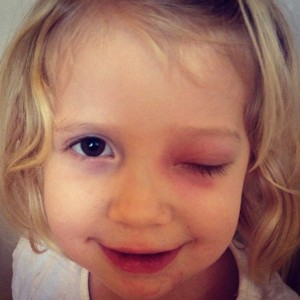 Осложнение этмоидита на глаза