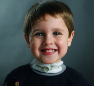 Интубационная трубка у ребенка