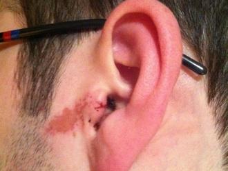 Кровотечение из уха: причины и лечение