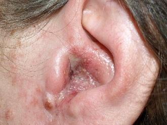 Отомикоз уха и препараты для его лечения