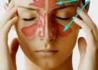 Синусит — воспаление придаточных пазух носа