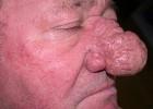 Заболевание ринофима носа