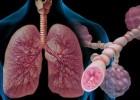 Аллергическая бронхиальная астма: причины, симптомы и лечение