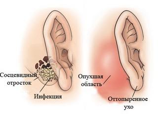Мастоидит уха: формы болезни и её лечение