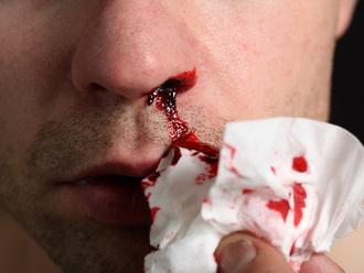 Как остановить кровь из носа у ребенка и взрослого